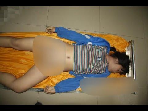 剖検15歳の女子学生は、ギャング死にレイプされた[1:20x720p]