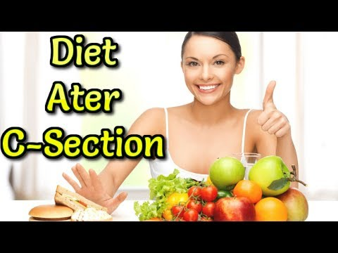 Foods You Can Eat After C-Section. Diet plan for cesarean Mother.