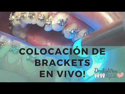 Colocación de Brackets en VIVO / Putting on Braces - LIVE