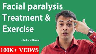 Facial paralysis treatment & exercise