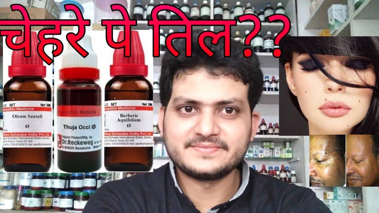 Facial black mole homeopath medicine remova pics