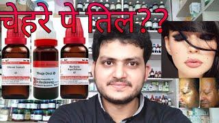 चेहरे पे तिल! Homeopathic medicines for black mole, til?? explain!