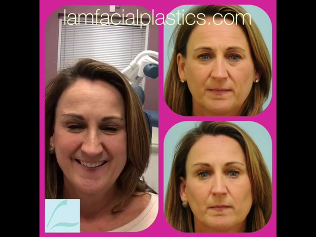 First-Time Fillers & Botox Testimonial in Dallas, TX