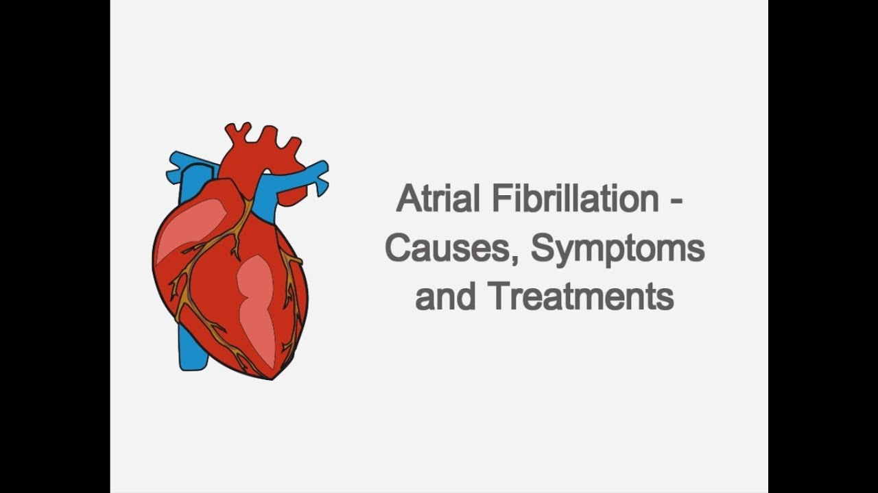 atrial fibrillation causes pathophysiology and treatment Choice of treatment for atrial fibrillation depends on the type of afib, the severity of symptoms, the underlying cause, and the patient's overall health general guidelines for afib treatment are available, but most doctors modify guidelines to best treat the individual.