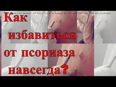 шамиль баркуев лечение псориаза