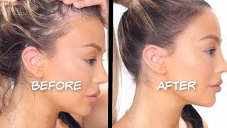 HOW TO FAKE A PERFECT HAIRLINE AND COVER BALD SPOTS - Dilan Sabah
