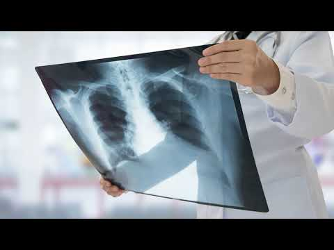 Как выглядят легкие здорового человека на флюорографии, на рентгене, на снимке?