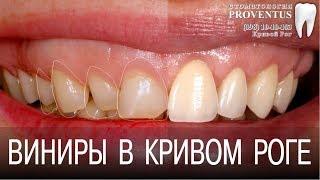 Установка виниров в Кривом Роге: как сделать виниры на зубы (фото до и после)