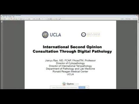 OptraSCAN Webinar: International & Domestic Telepathology Second Opinions