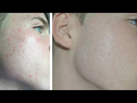 hqdefault - Makeup For Men To Cover Acne
