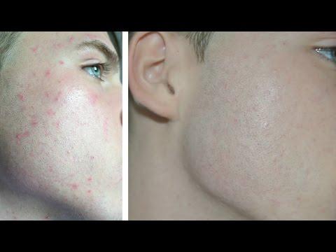hqdefault - Concealing Acne For Men