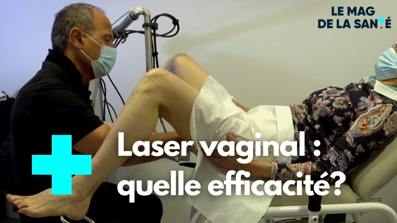 Download Sécheresse vaginale : traitement par laser - Le Magazine de la Santé