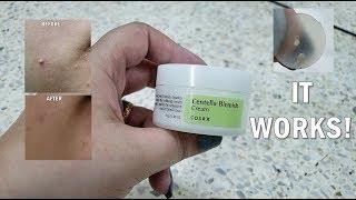 COSRX Centella Blemish Cream | Korean Skincare