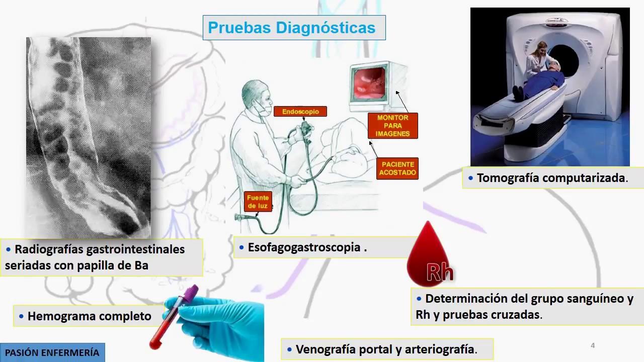 Nhs hipertensión portal y varices esofágicas