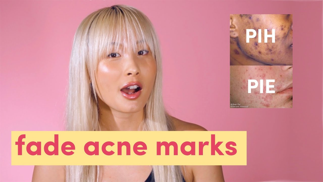 Fade Acne Marks Post Inflammatory Hyperpigmentation Post Inflammatory Erythema Pih Pie Youtube
