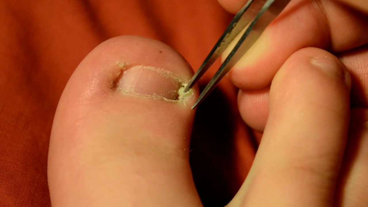 Releasing Ingrown Toenail Pus - YouTube