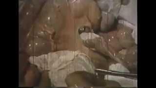 Операция желудка Наложение и фиксация желудочно кишечного анастомоза