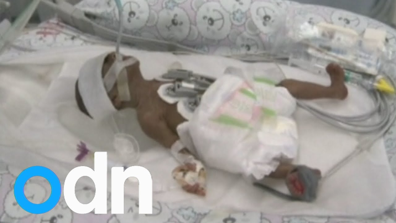 Baby girl miraculously survives miscarriage, born at 23 weeks in China -  YouTube