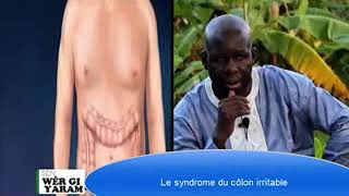 Sen wer gi yaram 343: Le syndrome du côlon irritable