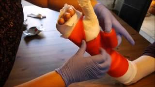 Pose de résine poignet