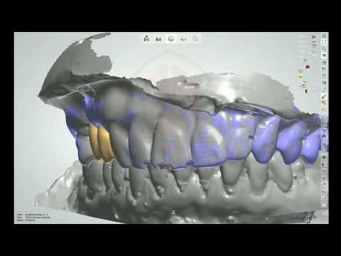 Design For Coping PFM Implant at Asia Afrika Dental Laboratory