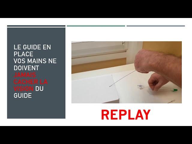 Ne le quittez pas des yeux ! - Société Française de Phlébologie