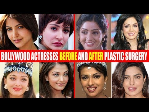 SHOCKING Plastic Surgery of Bollywood Actresses BEFORE & AFT