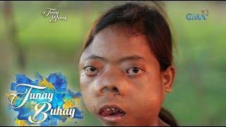 Tunay na Buhay: Binatang may tumor sa mukha, kilalanin