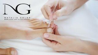 Тампонада вросшего ногтя: классический педикюр. Periscope / Tamponade ingrown nail: classic pedicure(Классический педикюр - https://www.youtube.com/watch?v=jwHsNWg-X_M&index=6&list=PLwb9HlhVpANkw1_Y1JqrrSnrySMHifvt2 Подногтевой мозоль ..., 2016-03-01T17:42:00.000Z)