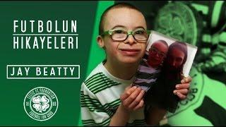 Down Sendromlu Celtic Taraftarı Jay Beatty'nin Hikayesi - Futbolun Hikayeleri