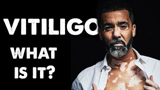 Vitiligo.. What is it?