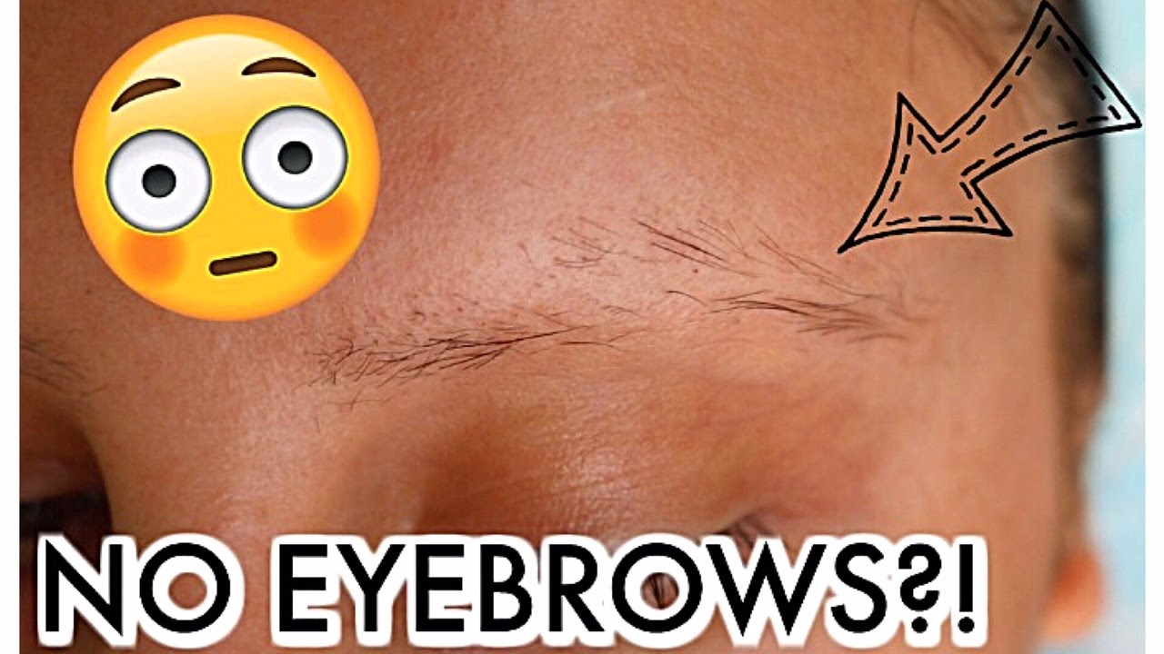 Why Are My Eyebrows Falling Out Eyebrow Update Youtube