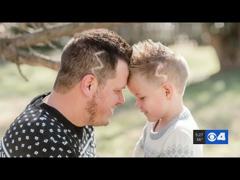 Dad Gets Lightning Bolt Shaved Into His Hair To Match His Son's Scar