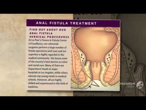 Anal cyst