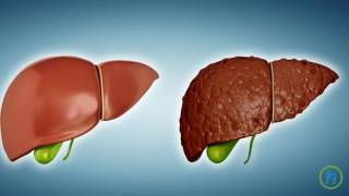 What is Liver cirrhosis?