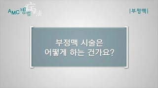 부정맥 치료를 위한 도자절제술 [AMC 병법]