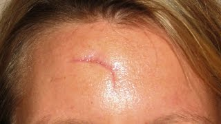 Home remedies for scar removal | how to remove scars