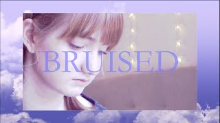 Bruised (Ben Folds) | Cover