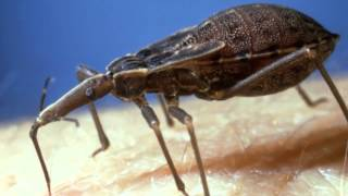 Chagas Disease: Poverty, Immigration, and the New HIV/AIDS