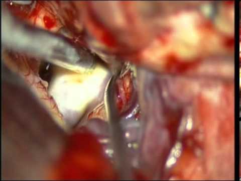 carotid artery carotid artery dissection youtube