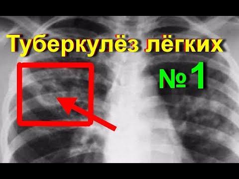 Туберкулез - Причины, симптомы и лечение. МЖ.
