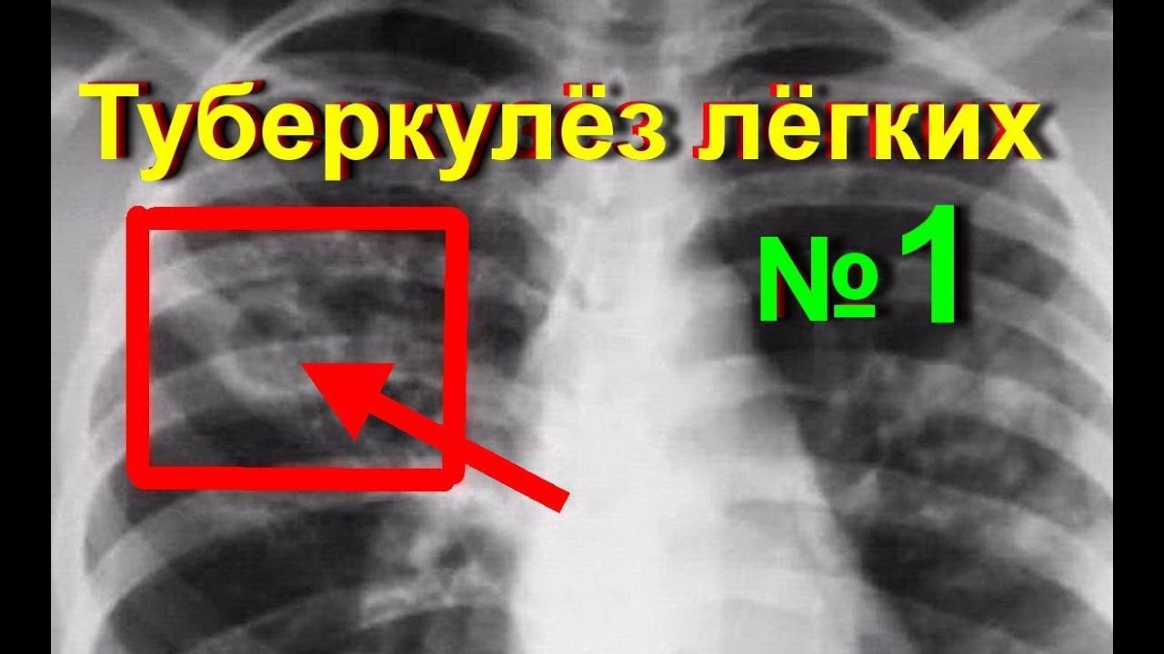 Лечения туберкулеза в домашних условиях у взрослых 43