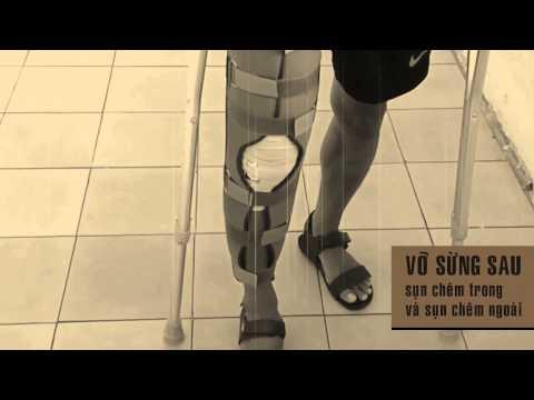 Chấn thương dây chằng trong thể thao - Hãy khởi động kỹ trước khi quá muộn.