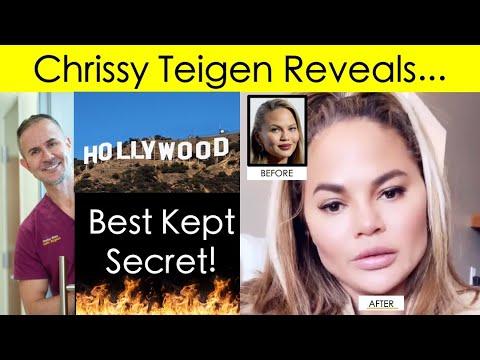 Chrissy Teigen Reveals Hollywood's Best Kept Secret: Buccal Fat Removal!