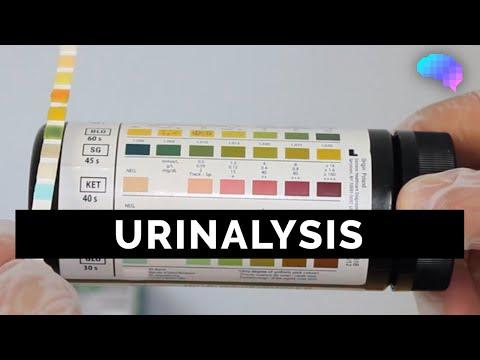 Urinalysis - OSCE Guide