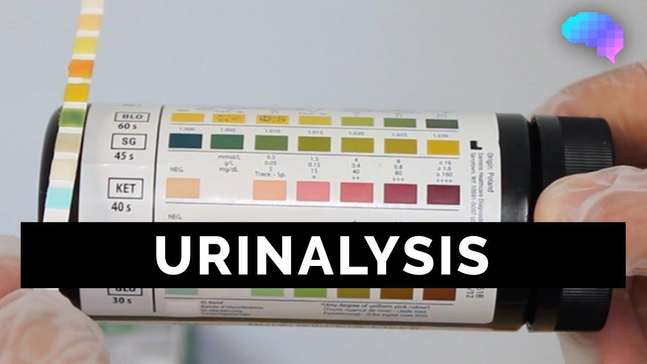 Multistix Urinalysis Interpretation Guide