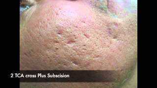 TCA CROSS for acne scars