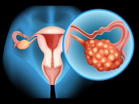 دراسة: الانتفاخ قد يكون أحد أعراض سرطان المبيض  - 16:22-2018 / 2 / 22