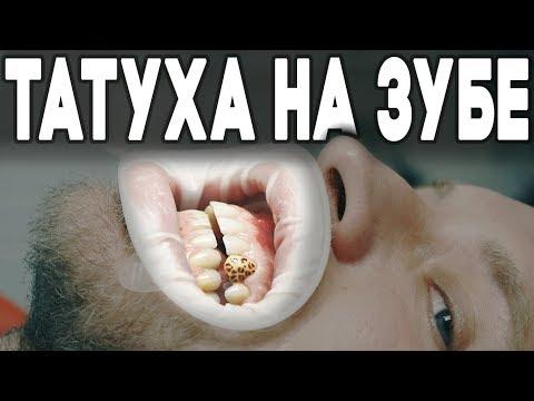 Необычная татуировка на зубе. Впервые в России. Сколько стоит