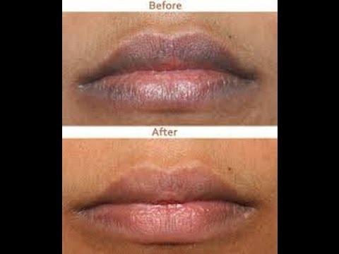 Cómo aclarar los labios oscuros - Anastassia Sfeir